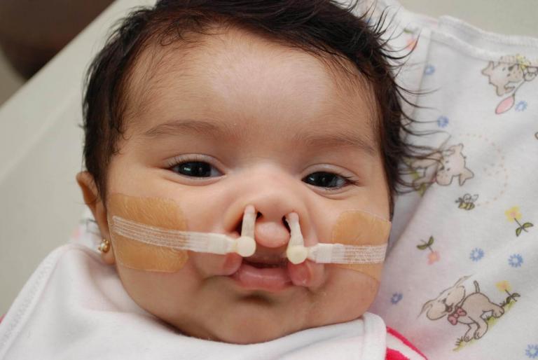 Ortopedia prequirúrgica para pacientes de escasos recursos, de Fundación Gantz